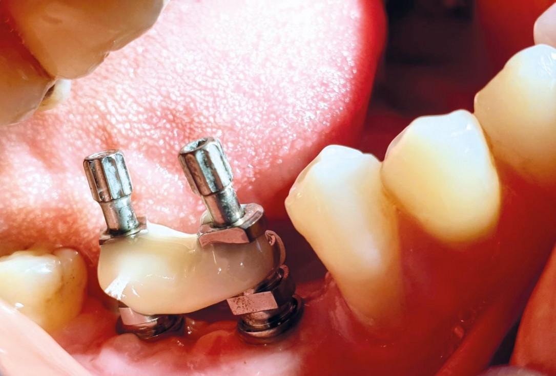 GBR with cerabone® and titanium reinforced PTFE membrane - DentalPro - A. Marchetta