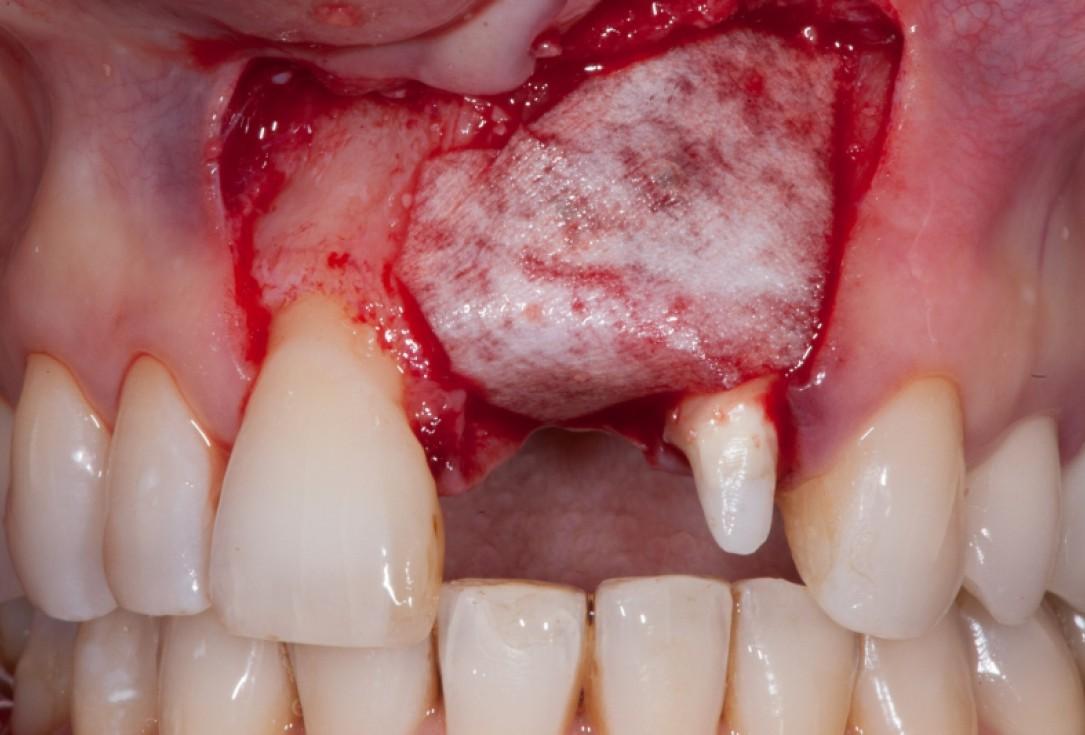 Augmentation with maxgraft® cortico - Dr. C. Chmielewski