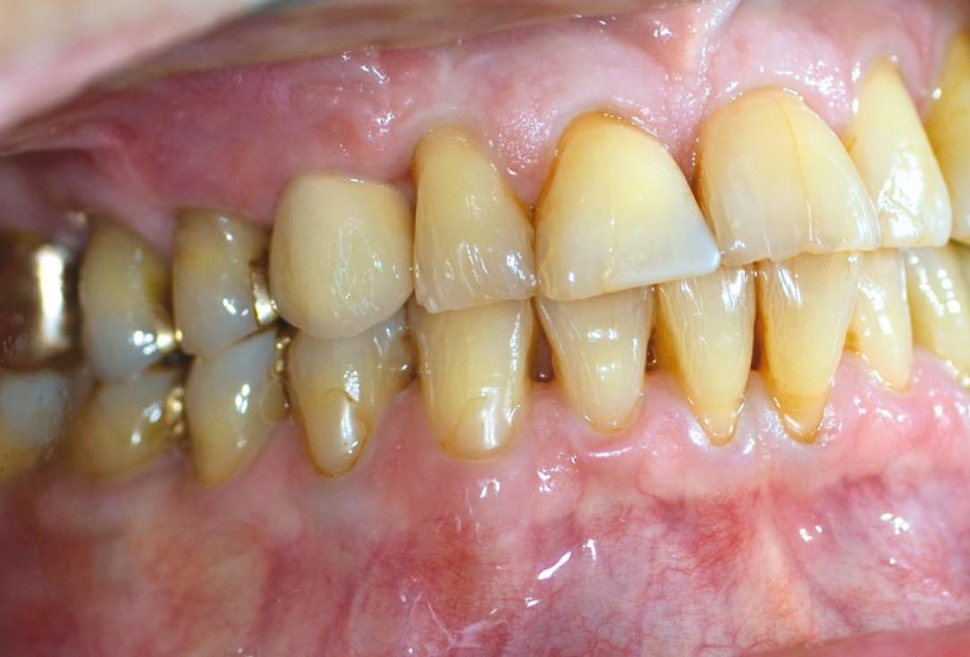 Block augmentation with maxgraft® in the maxilla - PD Dr. Dr. F. Kloss