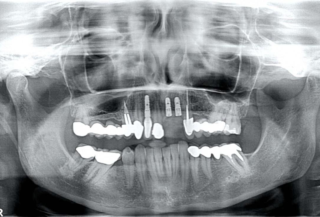 botiss maxgraft® bonebuilder for aesthetic zone reconstruction - Clinical case