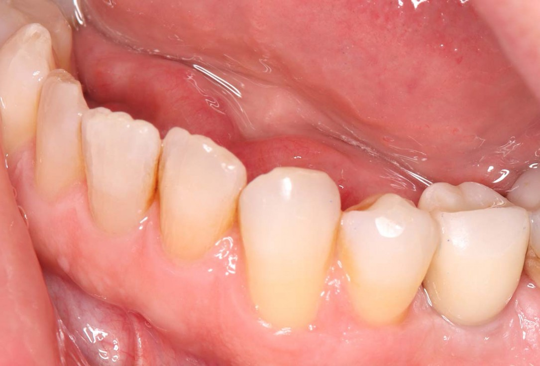 Reconstruction of a single tooth defect with the shell technique - Dr. Andoni Jones