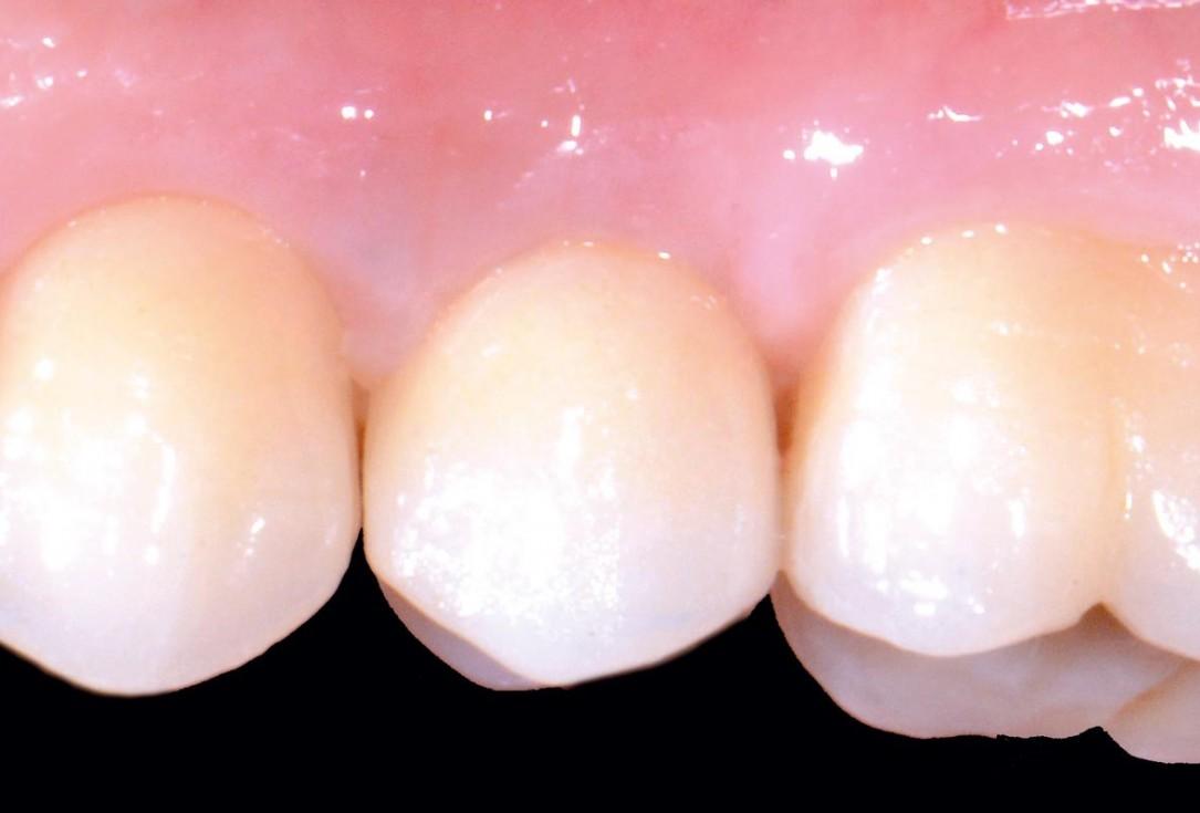 Full bone regeneration in extraction socket augmented with maxgraft® and Jason® membrane – Dr. C. Landsberg