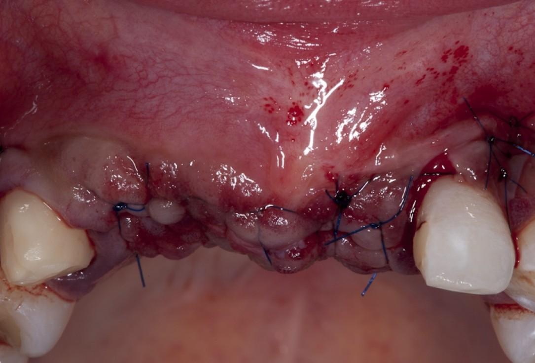 Block augmentation with maxgraft® block and mucoderm® - Dr. K. Chmielewski