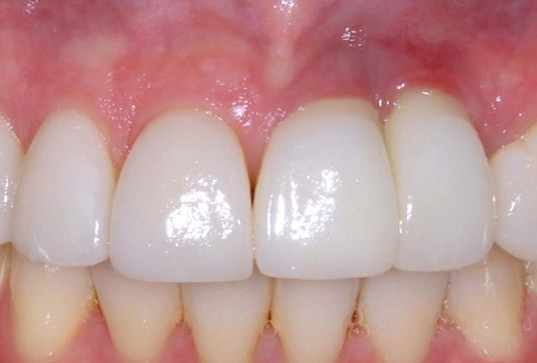 Regeneration of a 9 mm vertical bone defect with cerabone®, autologous bone and S-PRF –  Dr. A. Eslava