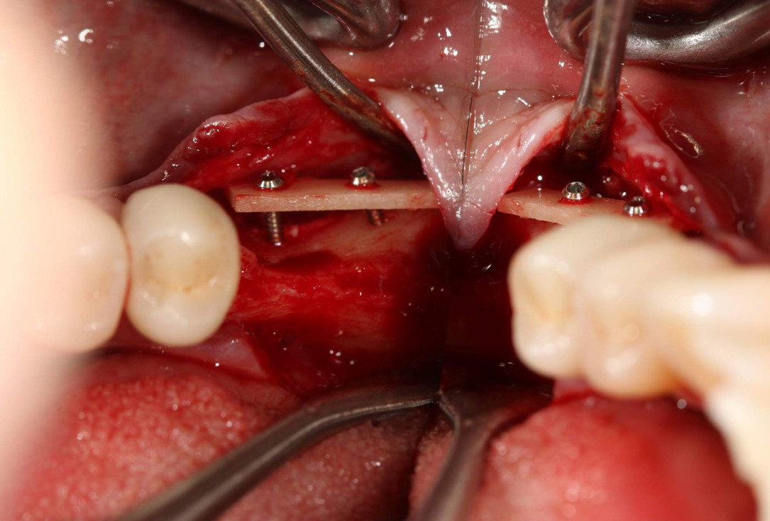 Edentulous space with maxgraft® cortico - Dr. C. Keller, Stuttgart, Germany