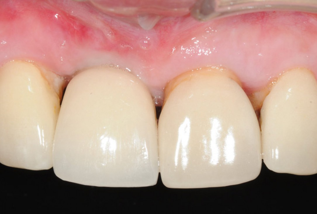 Restoration of buccal bone lamella in aesthetic zone with maxgraft® bonering - Dr. A. Patel