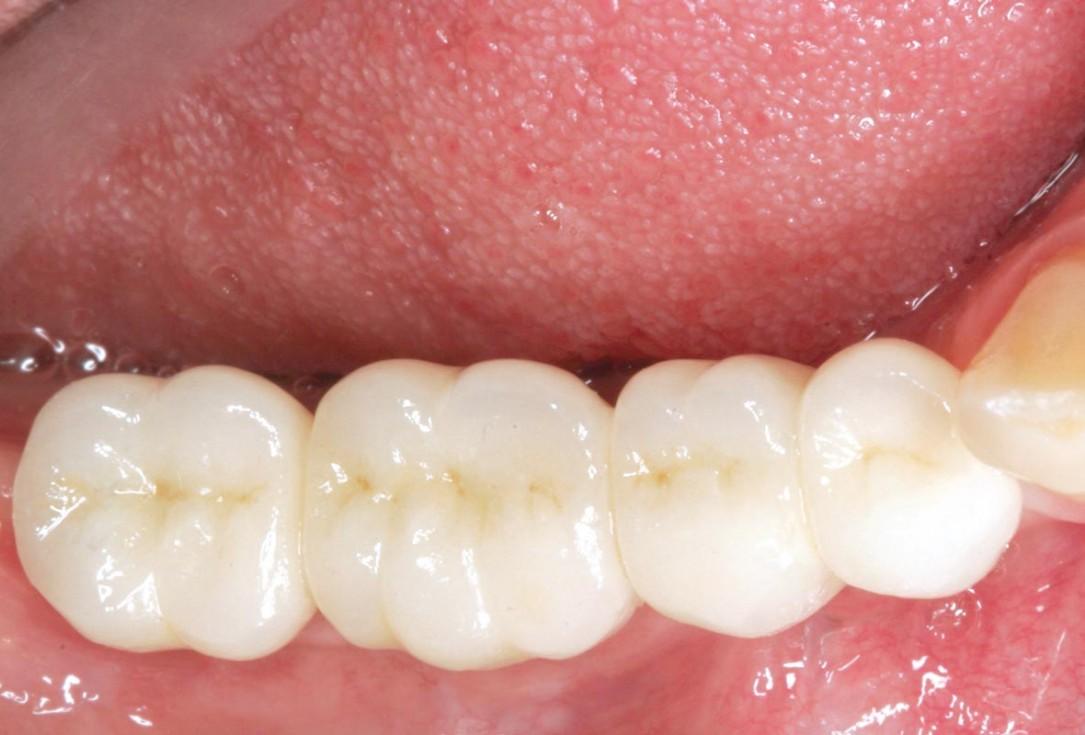 Horizontal ridge augmentation in the mandible with maxgraft® bonebuilder - Dr. O. Yüksel