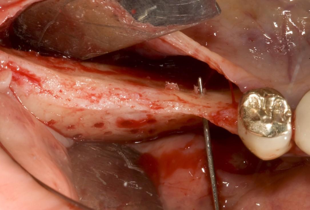 Ridge augmentation with maxgraft® bonebuilder - Dr. M. Jacotti