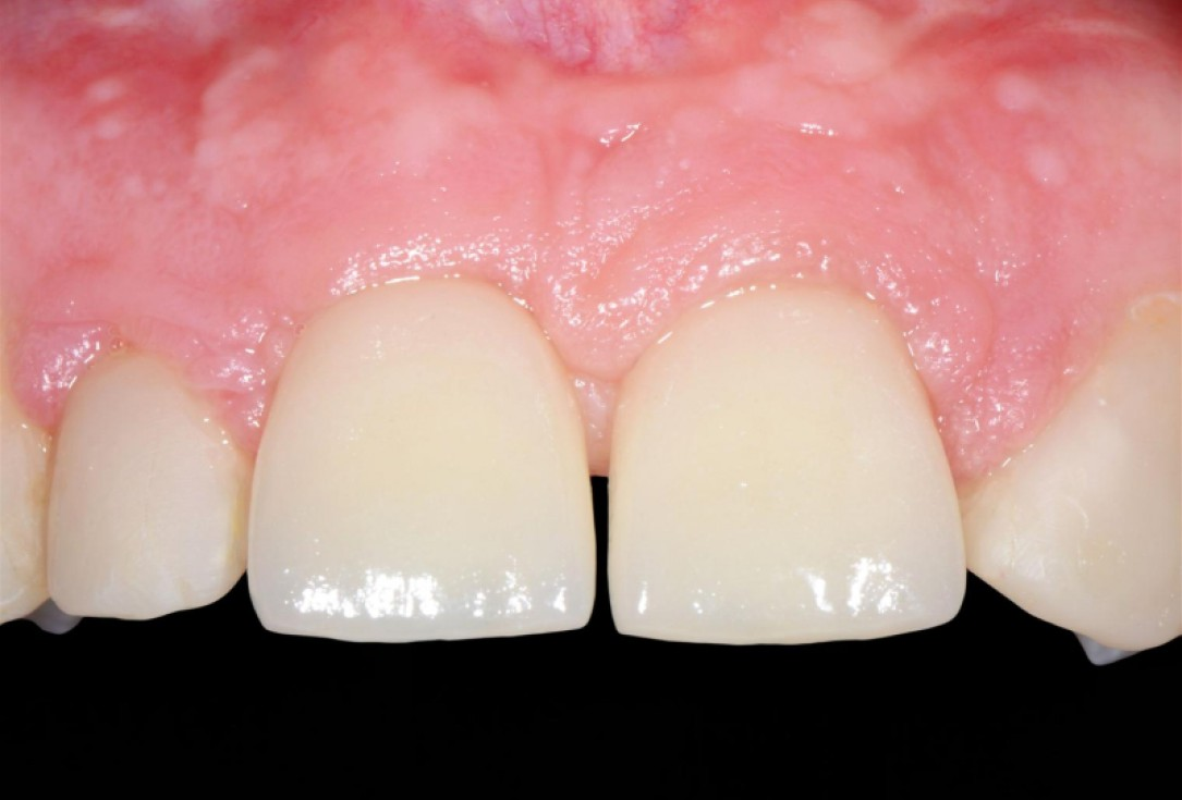 Ridge preservation with cerabone® Jason® membrane - Dr. D. Jelušić