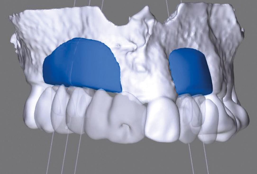 botiss maxgraft® bonebuilder for atrophic maxilla reconstruction - Clinical case