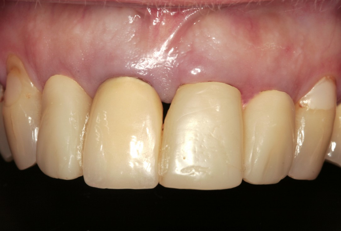 Restoration of all four incisors with two maxgraft® bonerings -Dr. B Giesenhagen