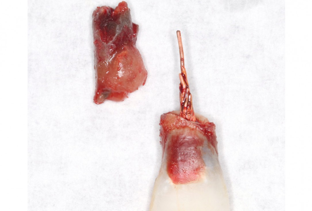 Type II socket defect grafted and repaired in a flapless way using Jason® membrane and maxgraft® cortico-cancellous - Dr. A. Jones