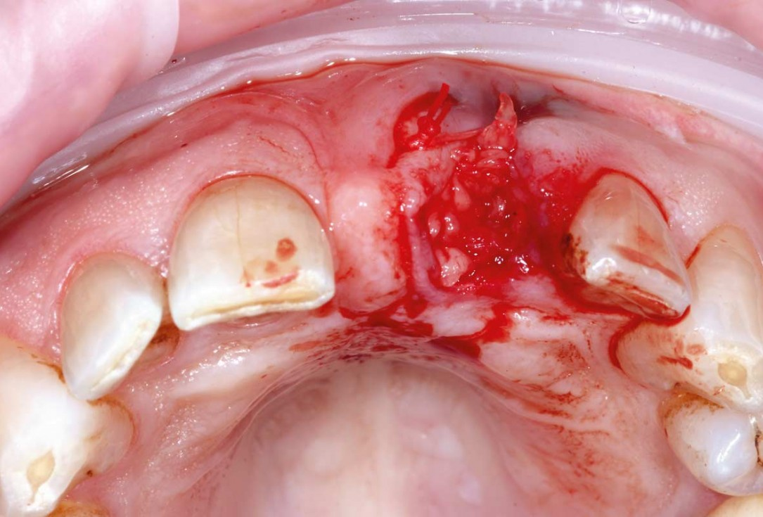 Bone augmentation in the aesthetic zone with maxgraft® bonering – Dr. R. Cutts