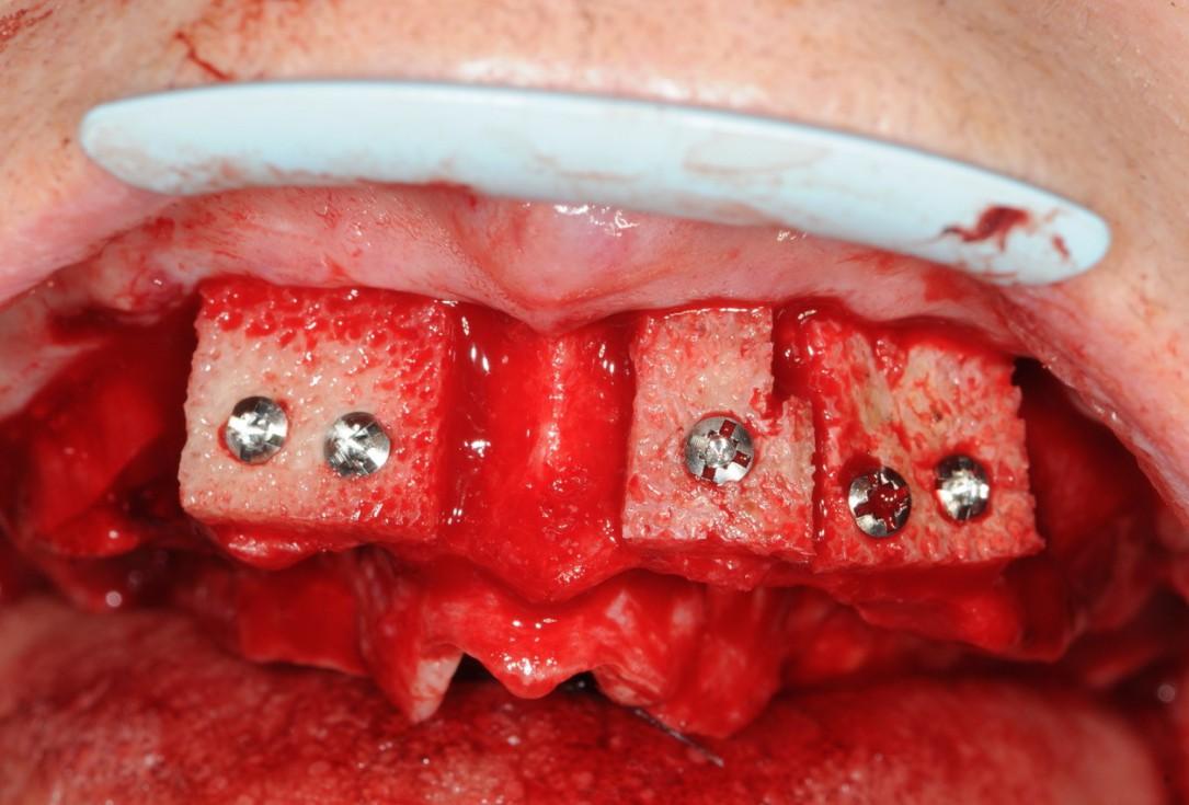 Reconstruction of maxillary ridge with maxgraft® block -Amit Patel