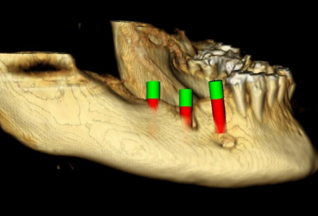 Ridge augmentation with maxgraft® bonebuilder - Dr. M. Jacotti
