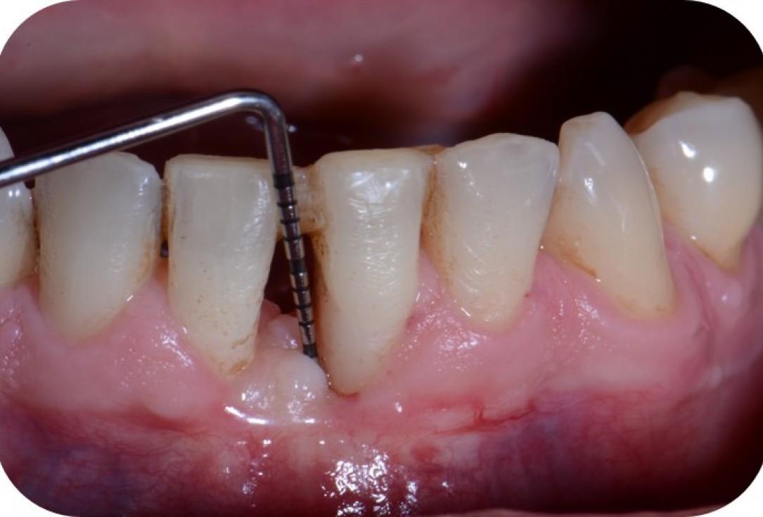Two-wall intrabony defect treated using cerabone® and Straumann® Emdogain® - Rakasevic & Jankovic