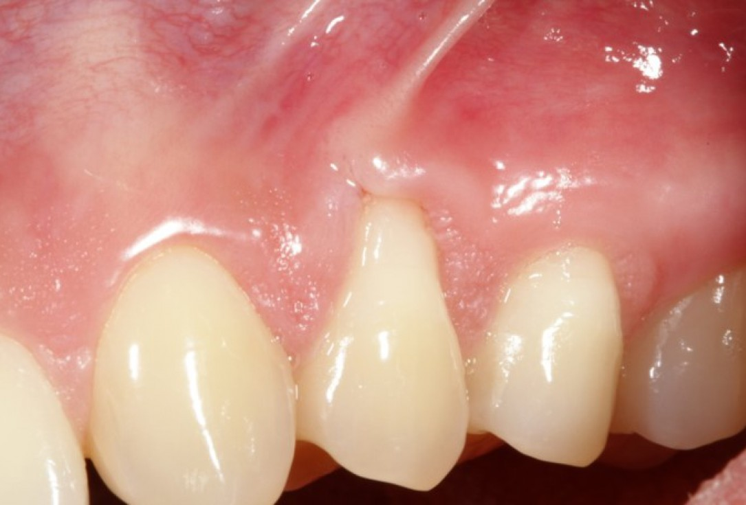 Single gingival recession treated by CAF in conjunction with mucoderm® - Kasaj