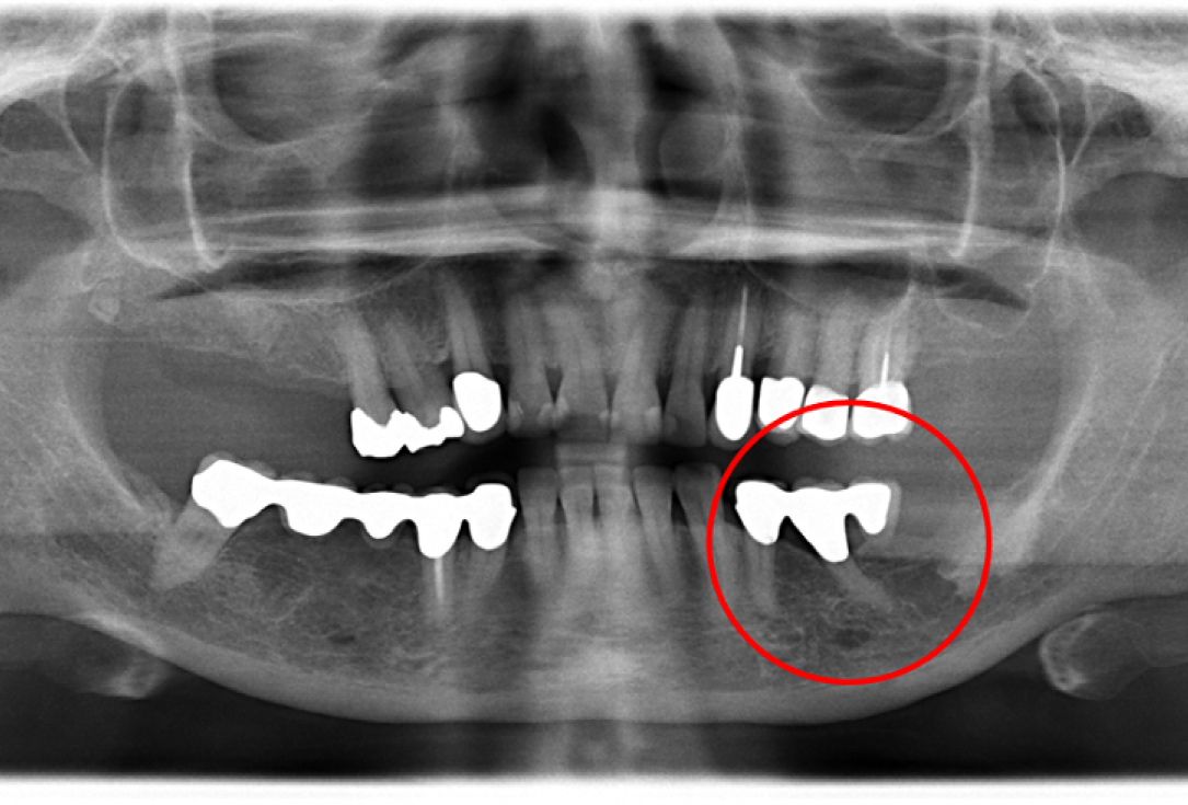 Contained intrabony defect treated using Straumann® Emdogain® - Kasaj