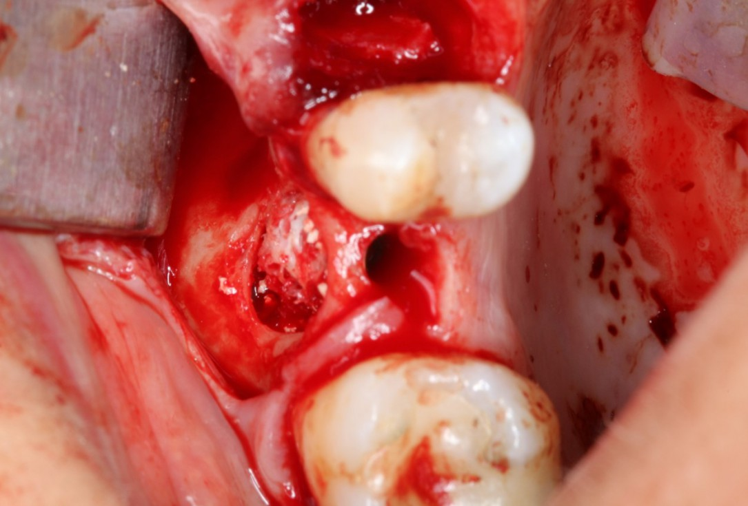Sinus Floor Elevation with maxgraft® bonering -Dr. B. Giesenhagen