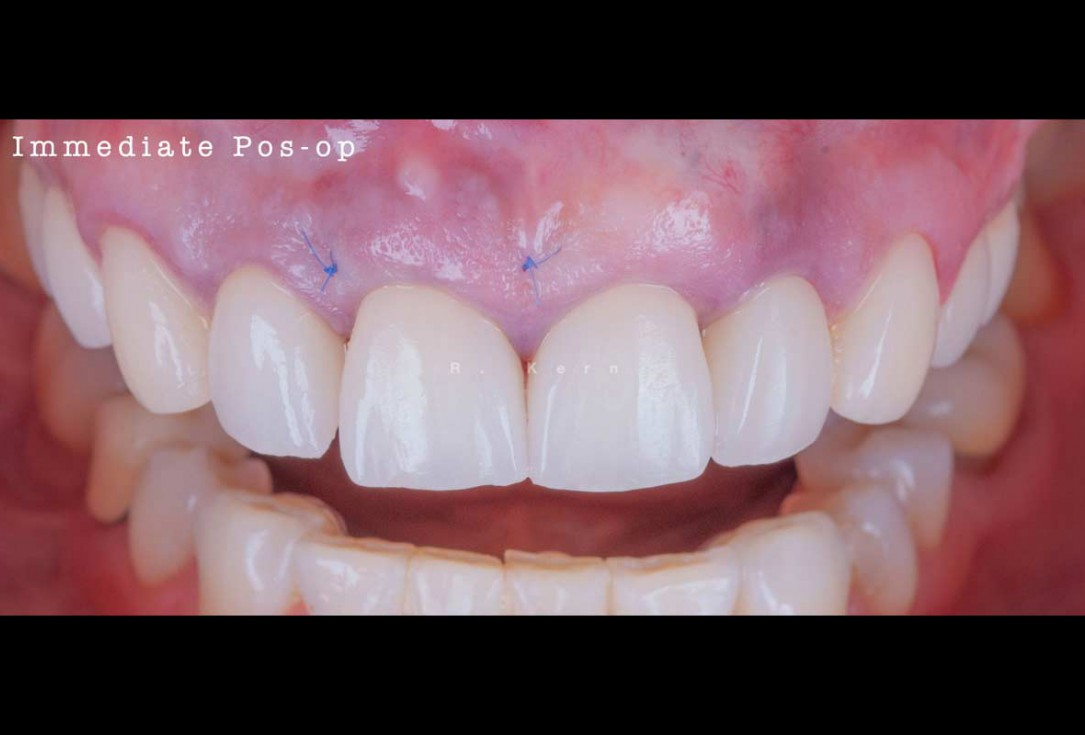 Immediate implant placement and periimplant bone augmentation using cerabone® - Dr. R. Kern