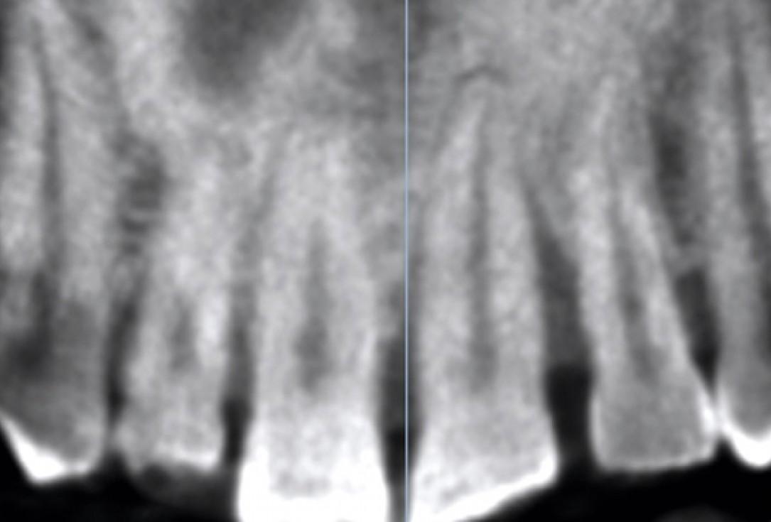 Immediate implant placement using cerabone® and Jason® fleece - Dr. D. Jelušić