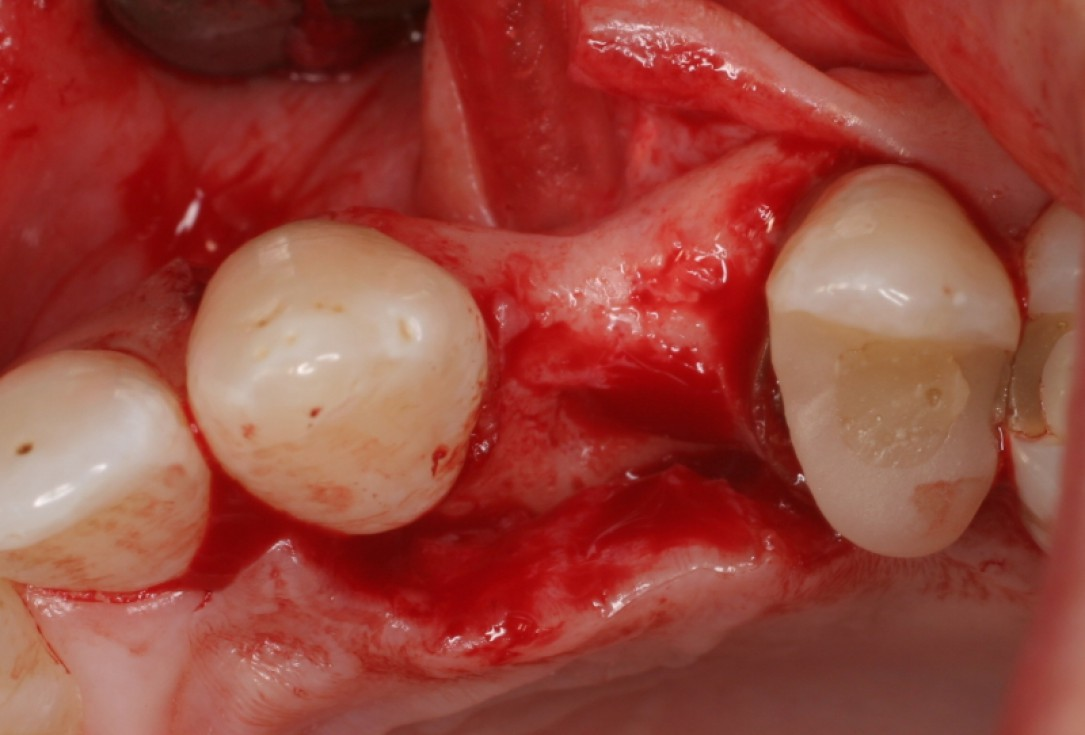 botiss cerabone® & Jason® membrane for horizontal augmentation - clinical case by Prof. Dr. Dr. D. Rothamel
