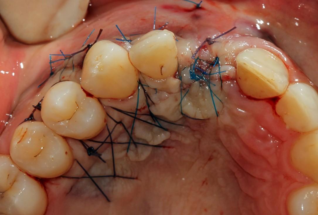 botiss cerabone® & Jason® membrane for block augmentation with autologous bone blocks - clinical case by Dr. S. Stavar