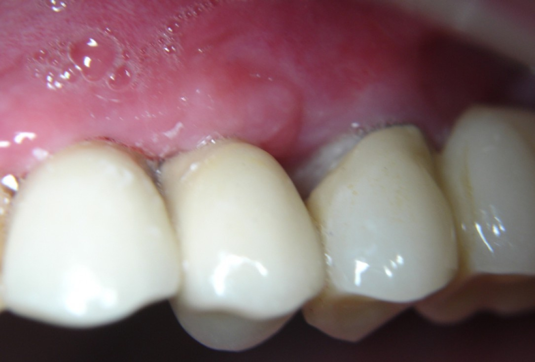 botiss cerabone® & Jason® membrane for GBR - Clinical case by Dr. S. Kovalevsky