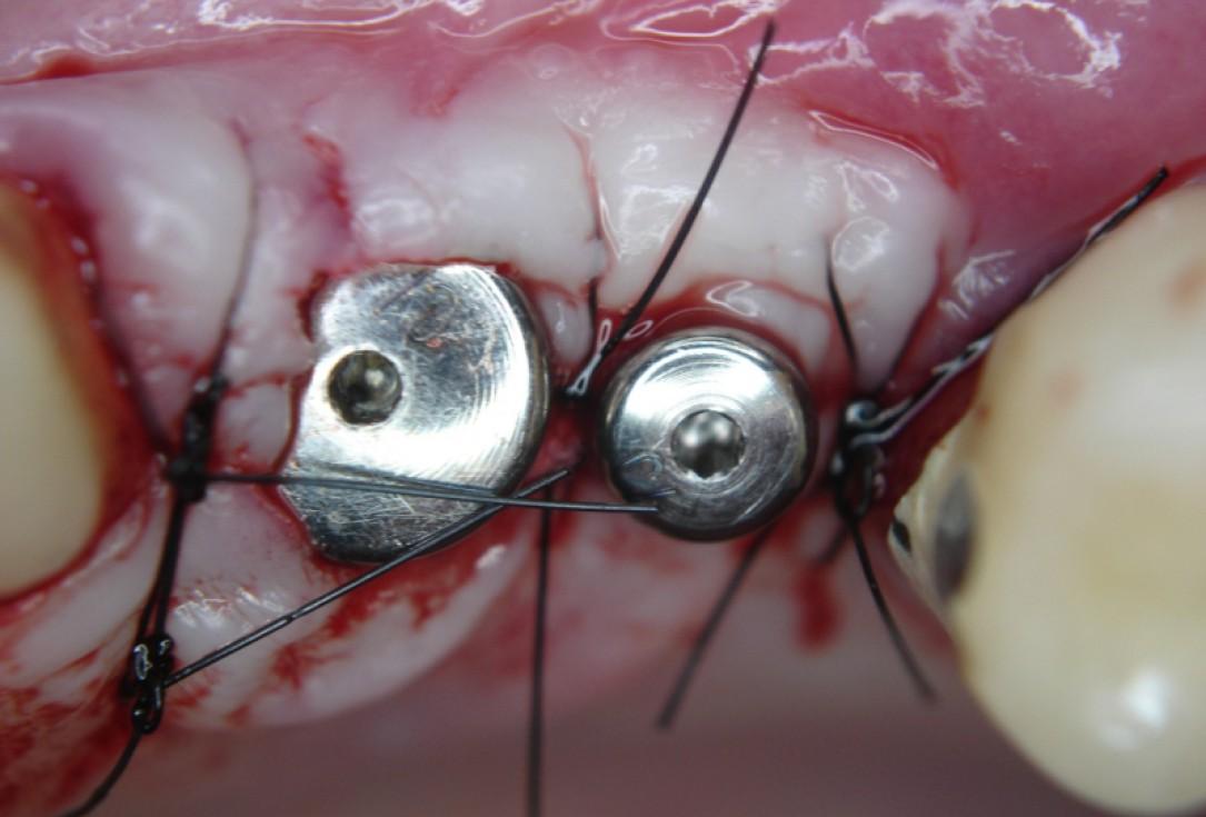 botiss cerabone® & Jason® membrane for GBR - Clinical case by Dr. S. Kovalevsky