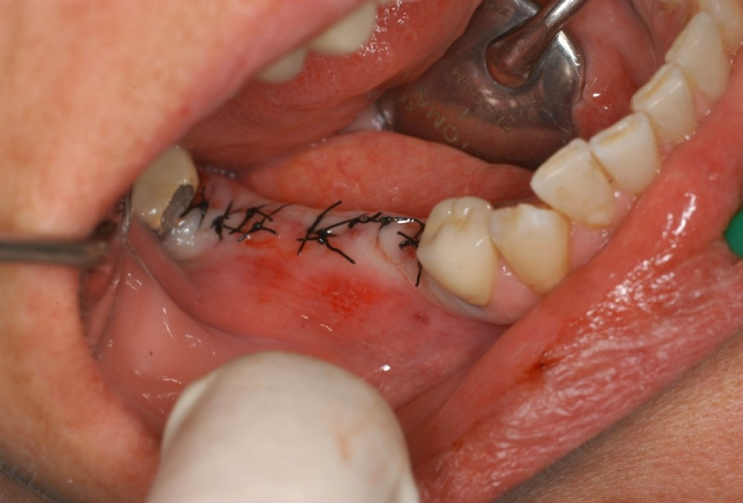 botiss cerabone® & Jason® membrane for horizontal augmentation - Clinical case by Dr. M. Steigmann