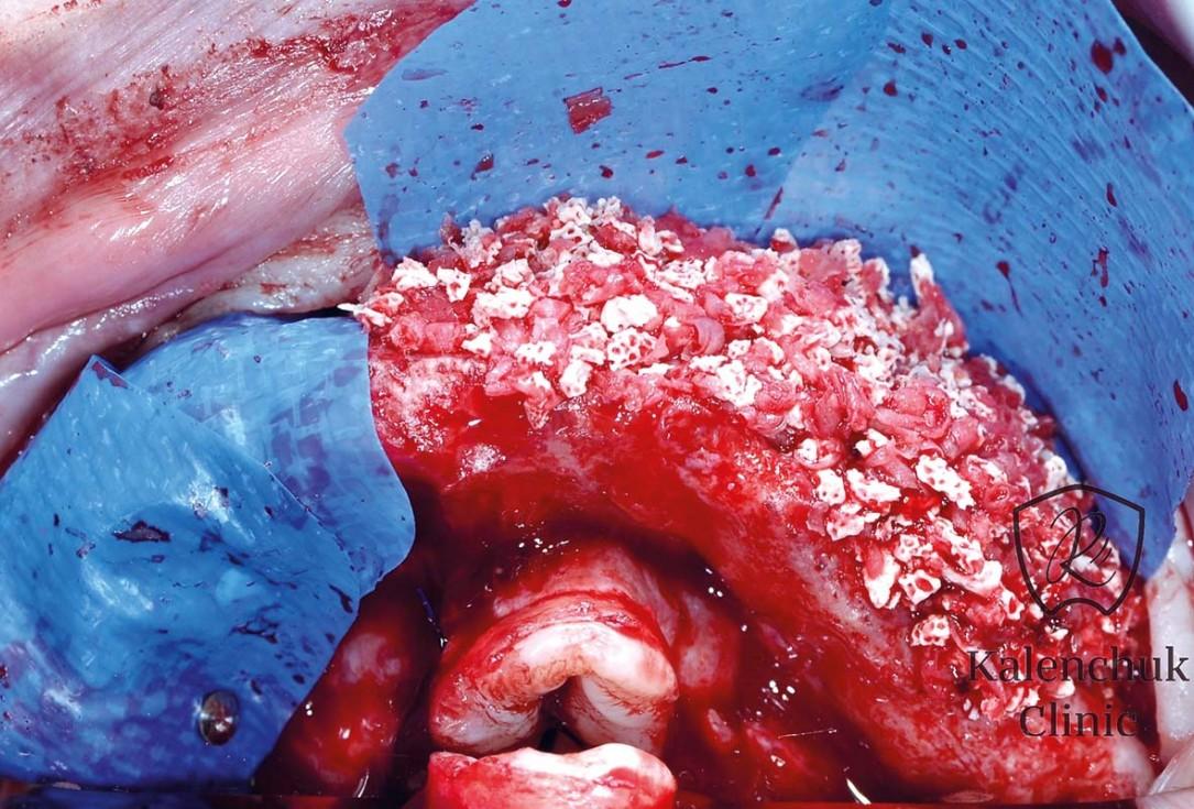 GBR of the edentulous maxillary ridge using permamem®, cerabone® and autologous bone chips - Dr. V. Kalenchuk