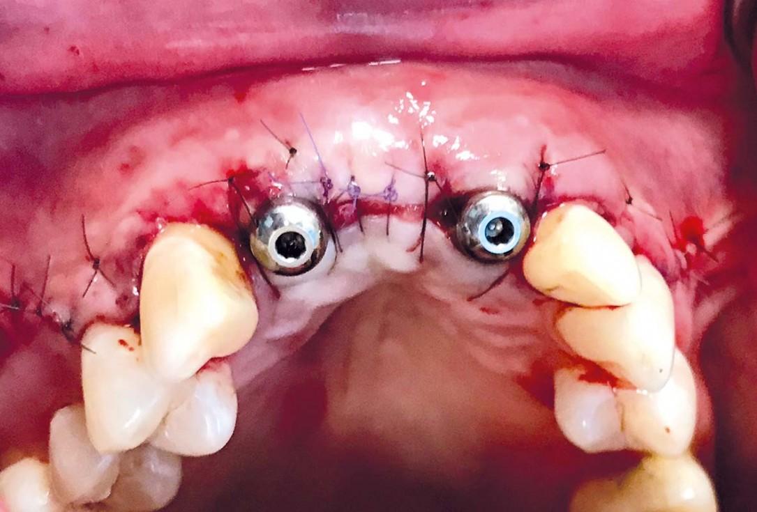 Implant placement and ridge augmentation using autologous bone, cerabone® and permamem® - Dr. I. Bellanco