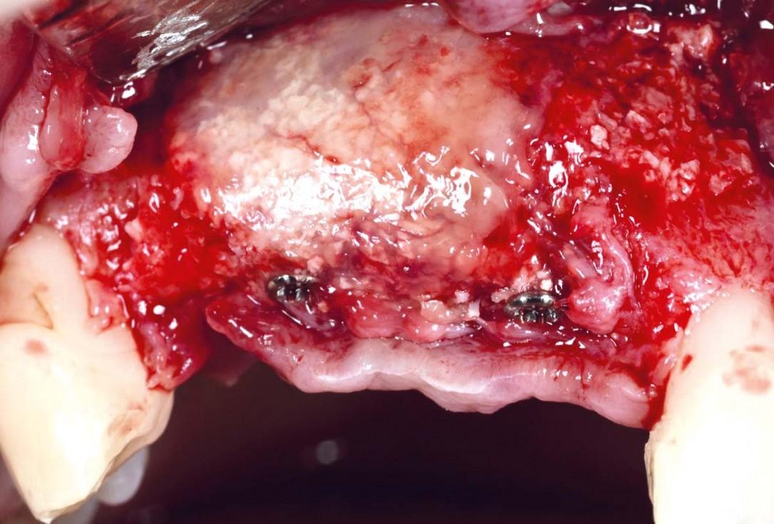 Vertical bone augmentation using tent pole screw-technique - Prof. Dr. S Fickl