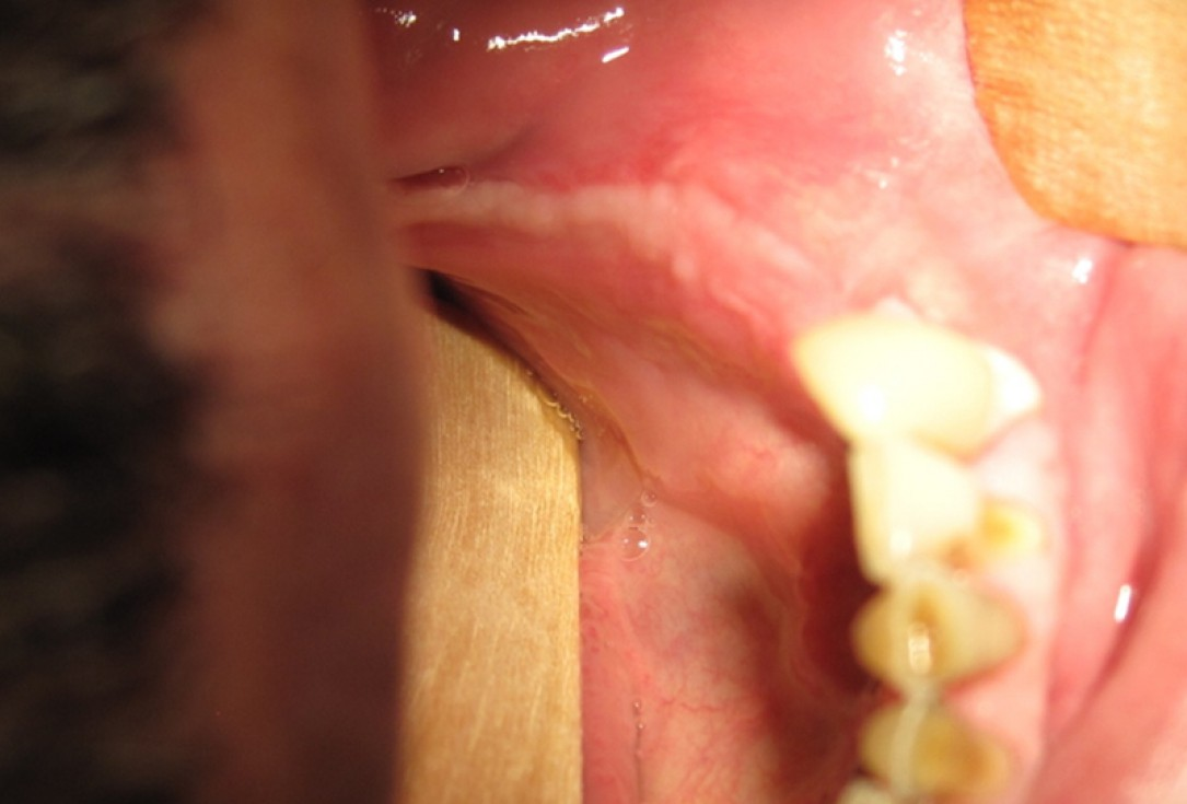 botiss cerabone for ridge splitting and augmentation of an atrophic alveolar ridge - Clinical case by Dr. V. Moshirabadi