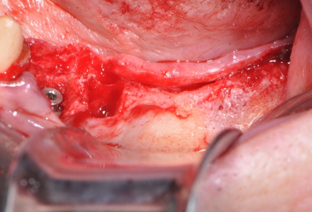 botiss maxgraft® bonebuilder & collprotect® membrane for ridge augmentation - Clinical case by Dr. V. Kalenchuk