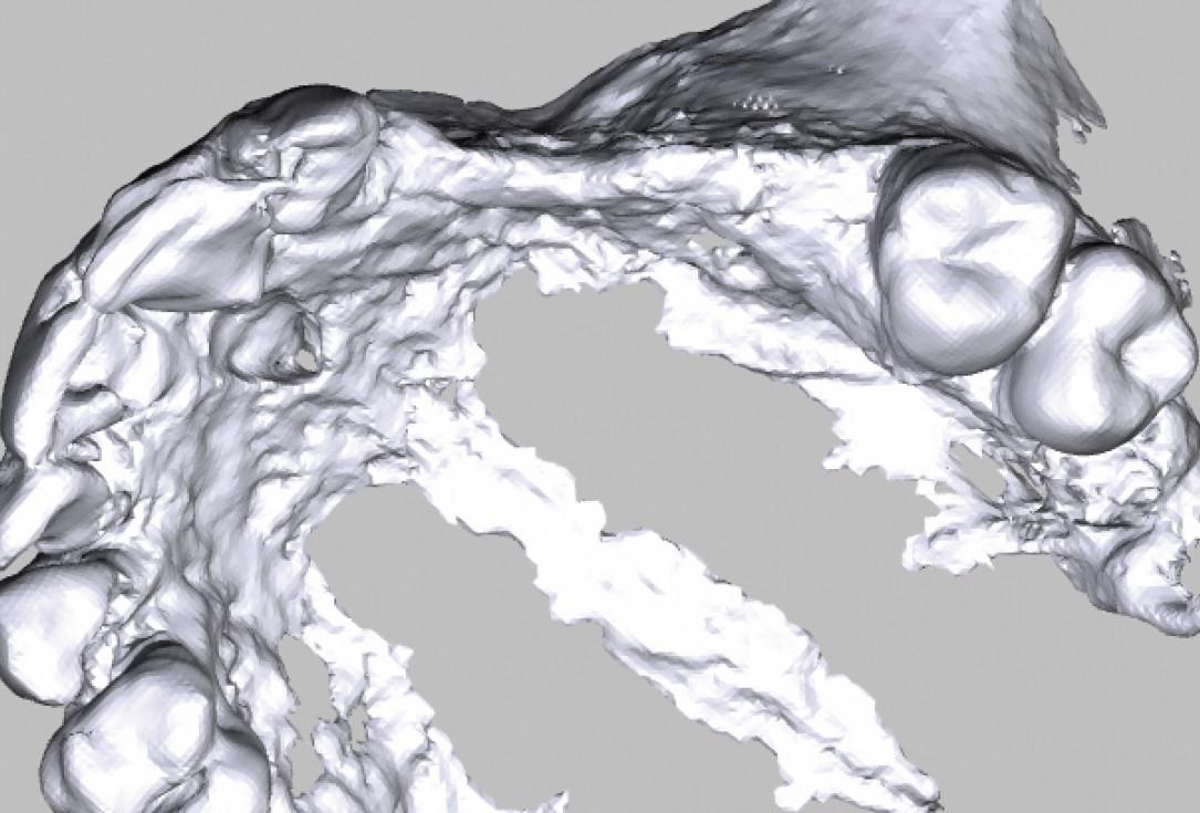 Augmentation with maxgraft® bonebuilder using a tunnel technique - Dr. S. Zarrine