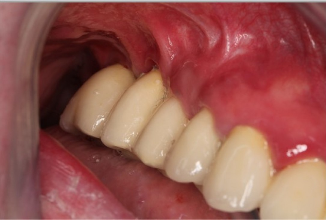 Augmentation of the maxillary attached gingiva-Stricker