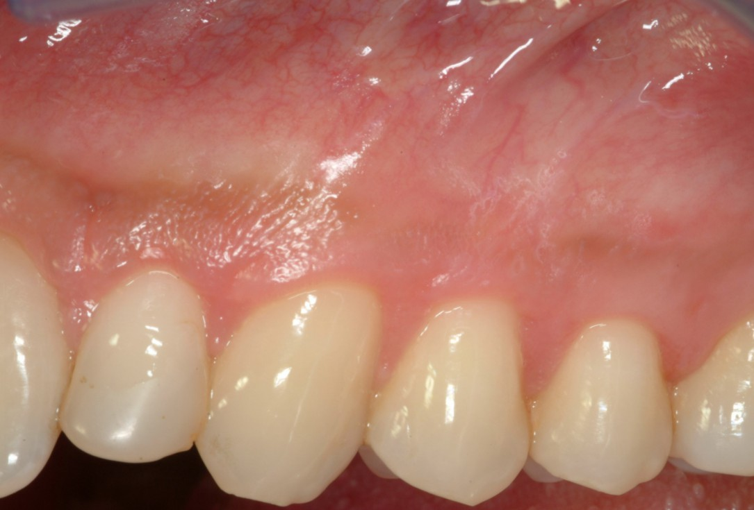 Multiple recession coverage with mucoderm® - Prof. G. Zucchelli & Dr. M. Stefanini