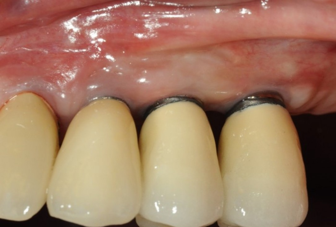 Widening of the peri-implant keratinized mucosa-Horváth