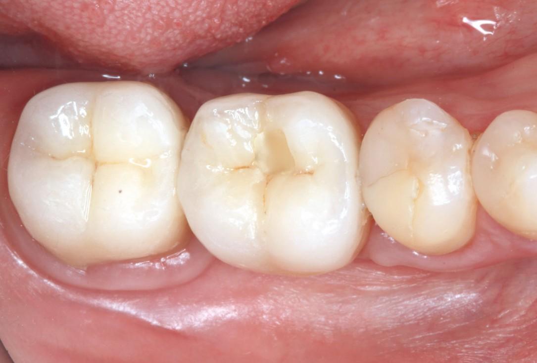 """Poncho technique"" with mucoderm® and Straumann® Emdogain® for peri-implant soft tissue augmentation - Dr. A. Puišys, Dr. E. Vindašiūtė-Narbutė, Dr. T. Linkevičius"