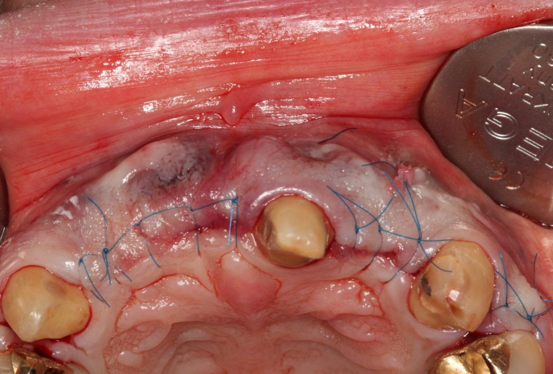 Pre-prosthetic soft tissue augmentation of the ridge contour- Rathe