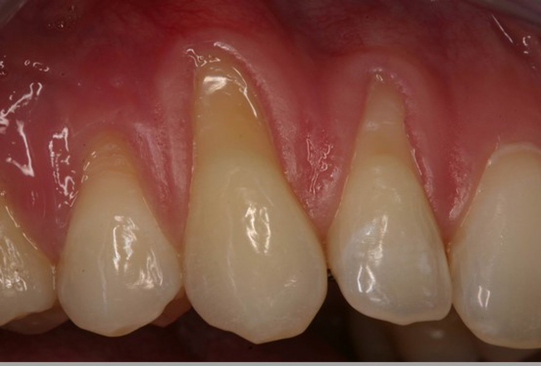 Multiple gingival recessions treated by MCAF in conjunction with mucoderm® - Kasaj
