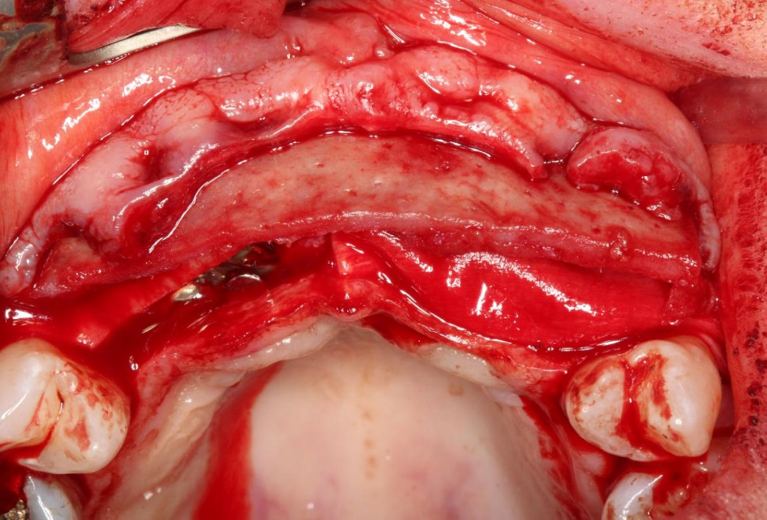 Soft tissue augmentation following ridge splitting- Rathe