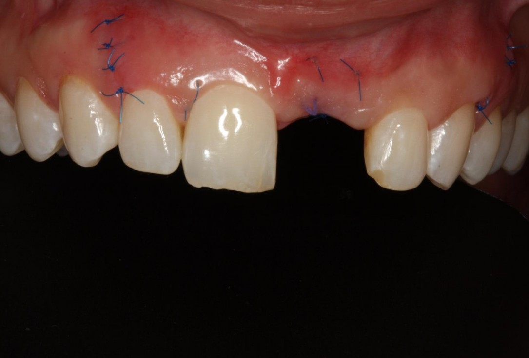 Soft tissue thickening at early implant placement-Puisys