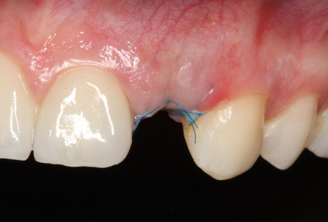 Soft tissue thickening at immediate implant placement with GBR - Dr. A. Puisys