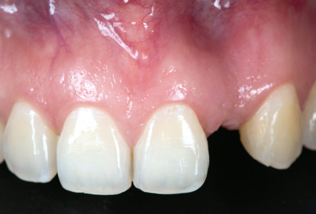 Horizontal ridge augmentation using cerabone® block, permamem® and Jason® membrane - Dr. P. Lázaro Calvo