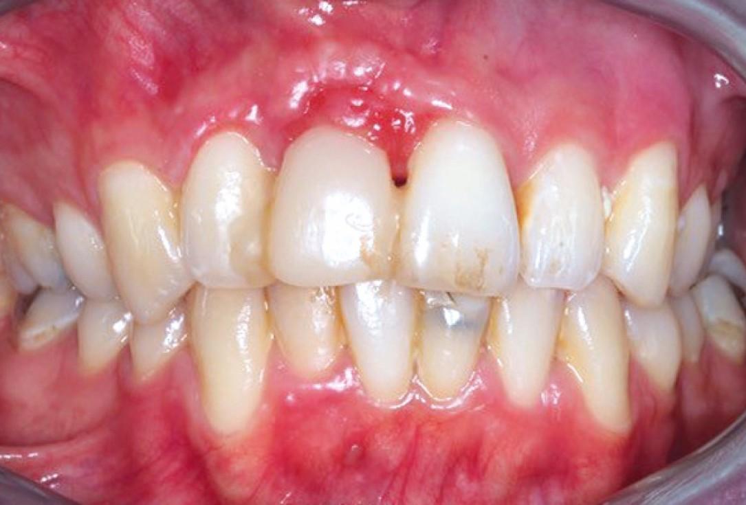 Ridge preservation with permamem®, maxgraft® granules and autologous bone - Dr. E. Valdimarsson