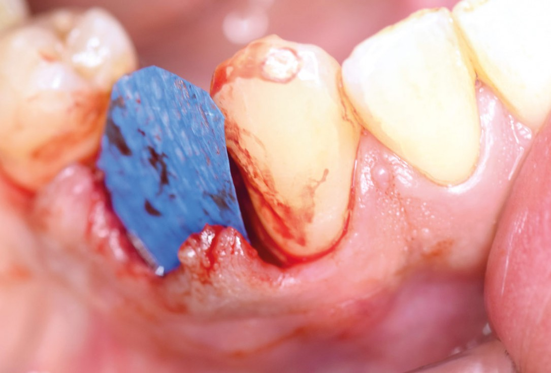 Ridge preservation using permamem® and maxgraft® granules - Dr. A. Wöst