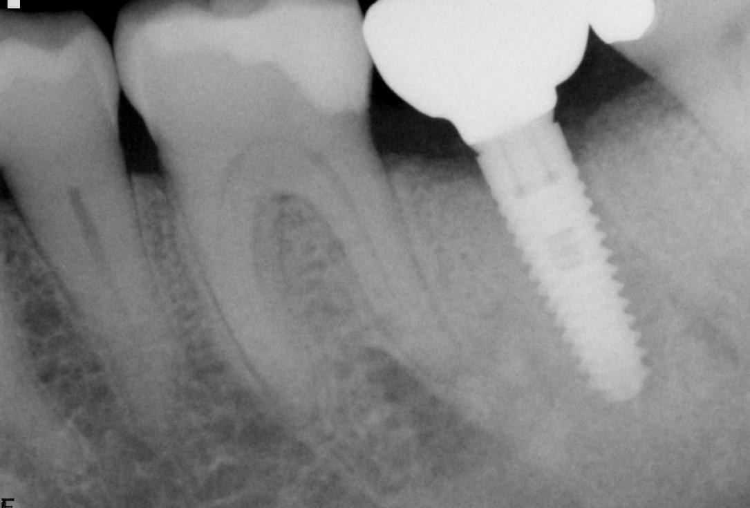 Socket preservation using cerabone®, Jason® membrane and permamem® - Dr. P. Di Capua