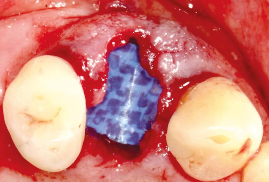 Socket preservation with permamem® - Dr. P. Papi